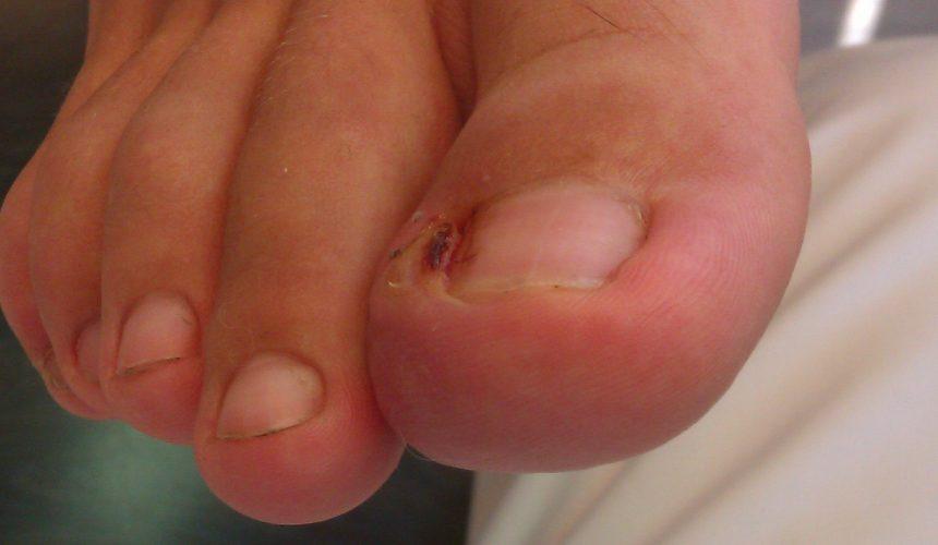 Onicocriptosis con granuloma